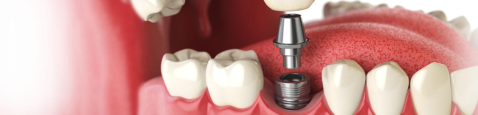 Human teeth implant dental concept